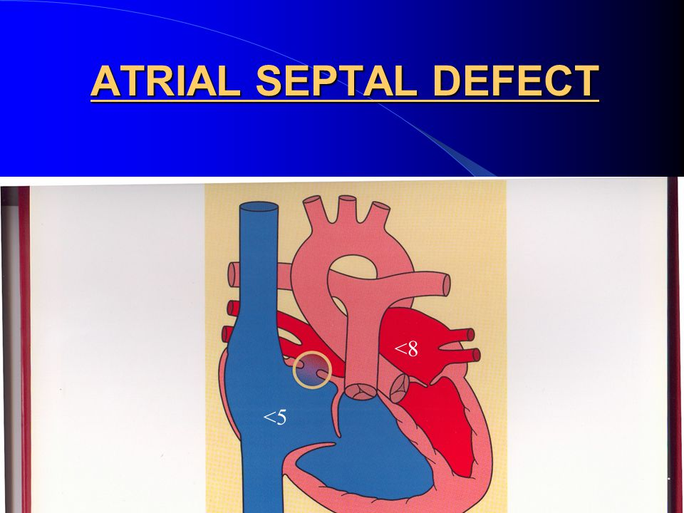 ATRIAL SEPTAL DEFECTS (ASD) Three types exist : primum, secundum and sinus venosus The most common is the secundum type Symptoms: None in childhood, arrhythmias in the 3 rd decade