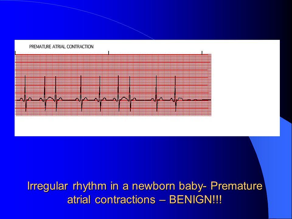 Irregular rhythm in a newborn baby- Premature atrial contractions – BENIGN!!!