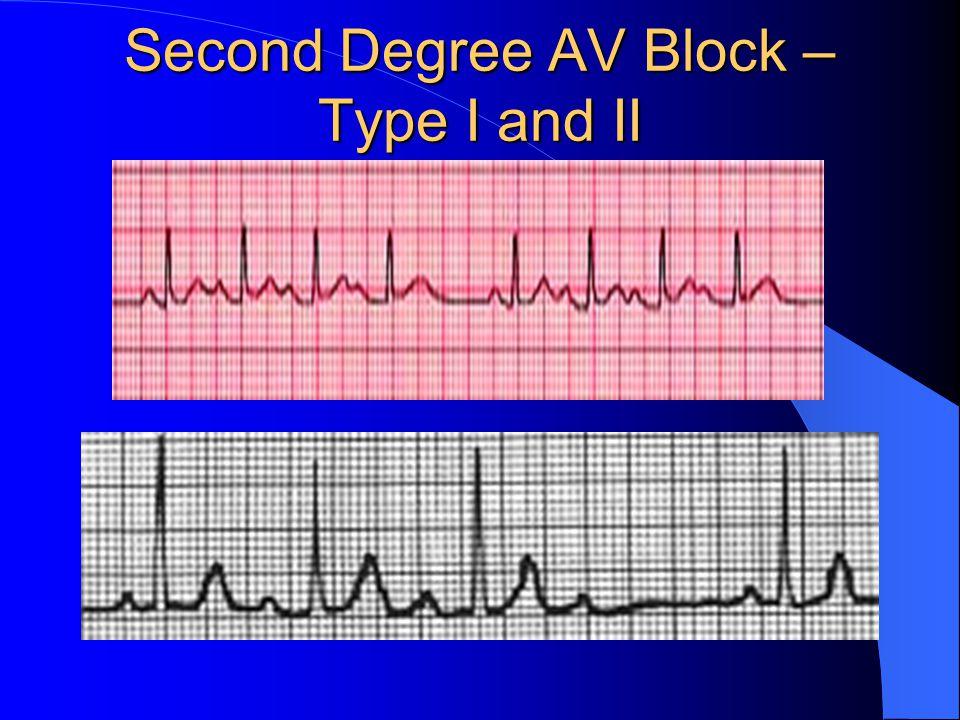 Second Degree AV Block – Type I and II
