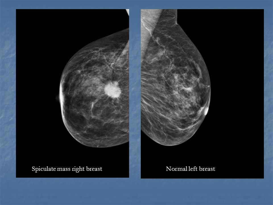 Normal left breastSpiculate mass right breast