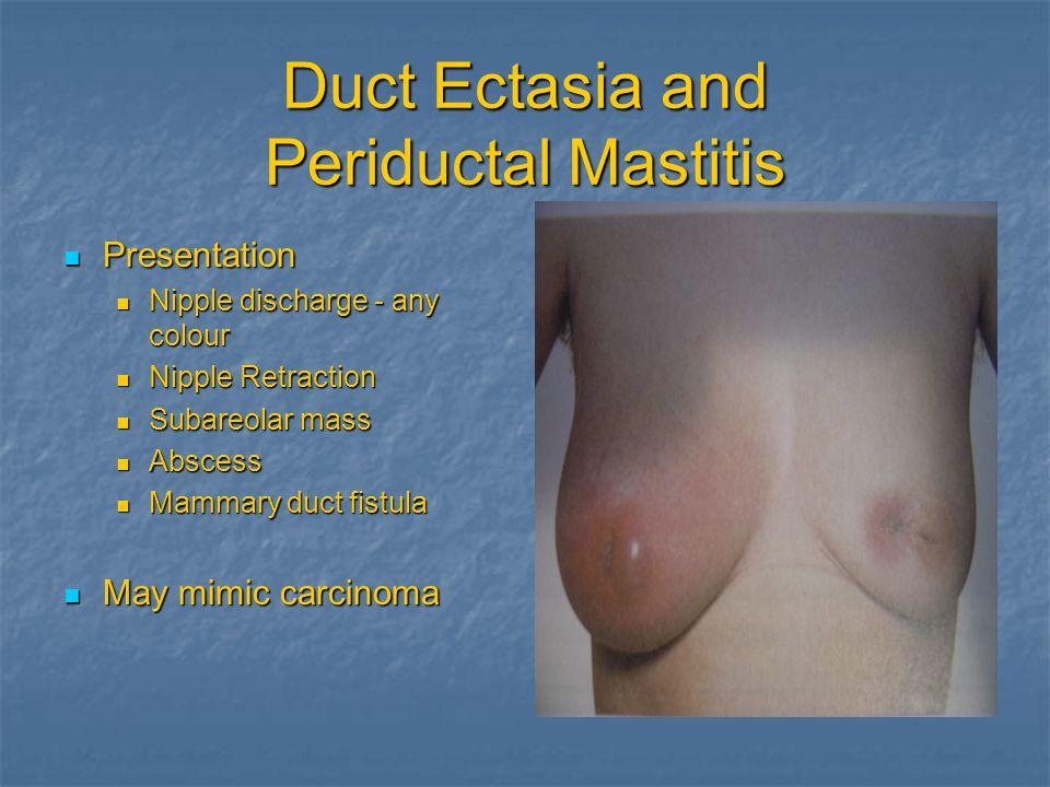 Duct Ectasia and Periductal Mastitis Presentation Presentation Nipple Nipple discharge - any colour Retraction Subareolar Subareolar mass Abscess Abscess Mammary Mammary duct fistula May May mimic carcinoma
