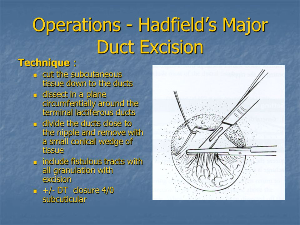 Operations - Hadfield's Major Duct Excision Technique : cut the subcutaneous tissue down to the ducts cut the subcutaneous tissue down to the ducts dissect in a plane circumfentially around the terminal lactiferous ducts dissect in a plane circumfentially around the terminal lactiferous ducts divide the ducts close to the nipple and remove with a small conical wedge of tissue divide the ducts close to the nipple and remove with a small conical wedge of tissue include fistulous tracts with all granulation with excision include fistulous tracts with all granulation with excision +/- DT closure 4/0 subcuticular +/- DT closure 4/0 subcuticular