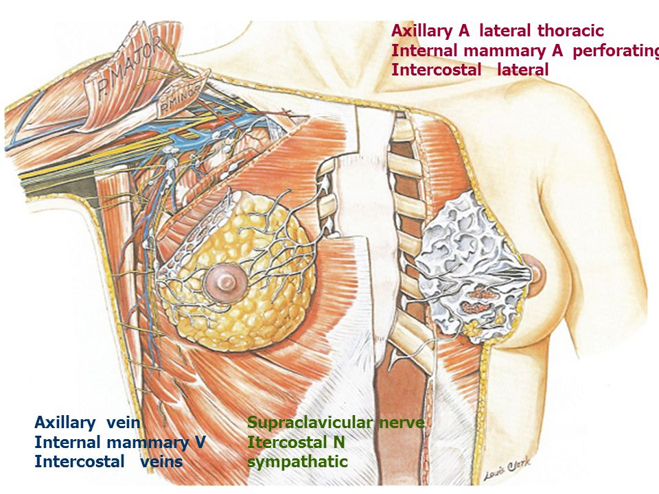 Axillary A lateral thoracic Internal mammary A perforating Intercostal lateral Axillary vein Internal mammary V Intercostal veins Supraclavicular nerve Itercostal N sympathatic