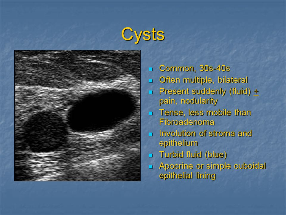 Cysts Common, 30s-40s Common, 30s-40s Often multiple, bilateral Often multiple, bilateral Present suddenly (fluid) + pain, nodularity Present suddenly (fluid) + pain, nodularity Tense, less mobile than Fibroadenoma Tense, less mobile than Fibroadenoma Involution of stroma and epithelium Involution of stroma and epithelium Turbid fluid (blue) Turbid fluid (blue) Apocrine or simple cuboidal epithelial lining Apocrine or simple cuboidal epithelial lining