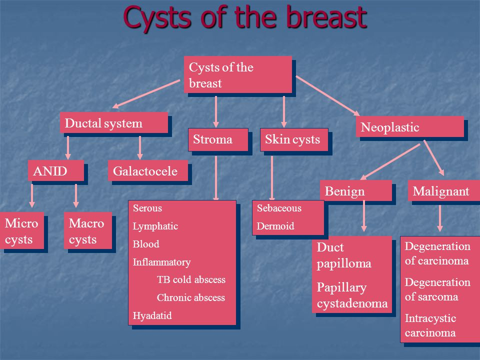 Cysts of the breast Ductal system Neoplastic ANID Macro cysts Micro cysts Stroma Duct papilloma Papillary cystadenoma Duct papilloma Papillary cystadenoma Benign Degeneration of carcinoma Degeneration of sarcoma Intracystic carcinoma Degeneration of carcinoma Degeneration of sarcoma Intracystic carcinoma Serous Lymphatic Blood Inflammatory TB cold abscess Chronic abscess Hyadatid Serous Lymphatic Blood Inflammatory TB cold abscess Chronic abscess Hyadatid Galactocele Skin cysts Malignant Sebaceous Dermoid Sebaceous Dermoid
