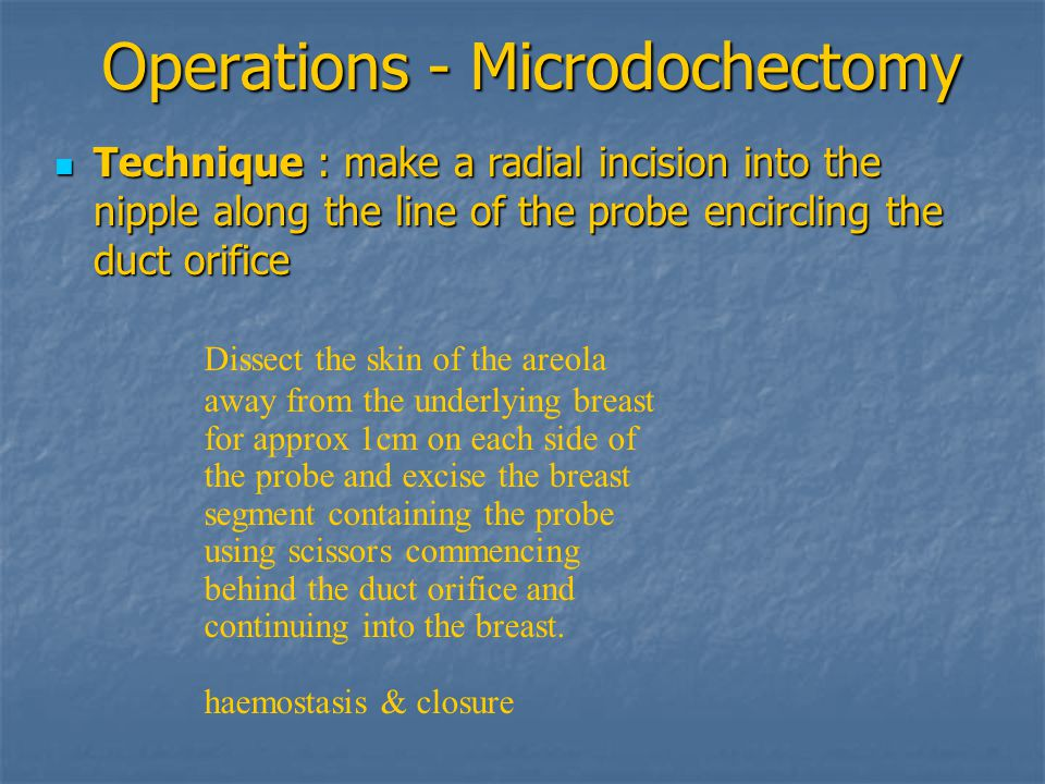 Operations - Microdochectomy Technique : make a radial incision into the nipple along the line of the probe encircling the duct orifice Technique : ma