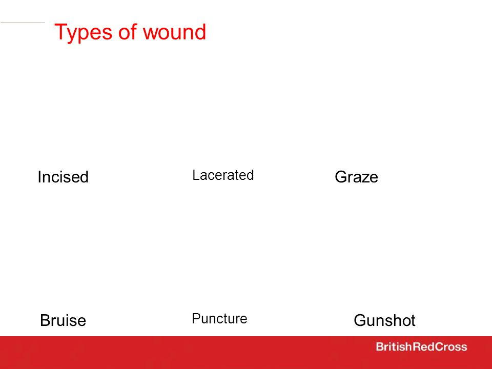 Lacerated IncisedGraze Bruise Puncture Gunshot Types of wound