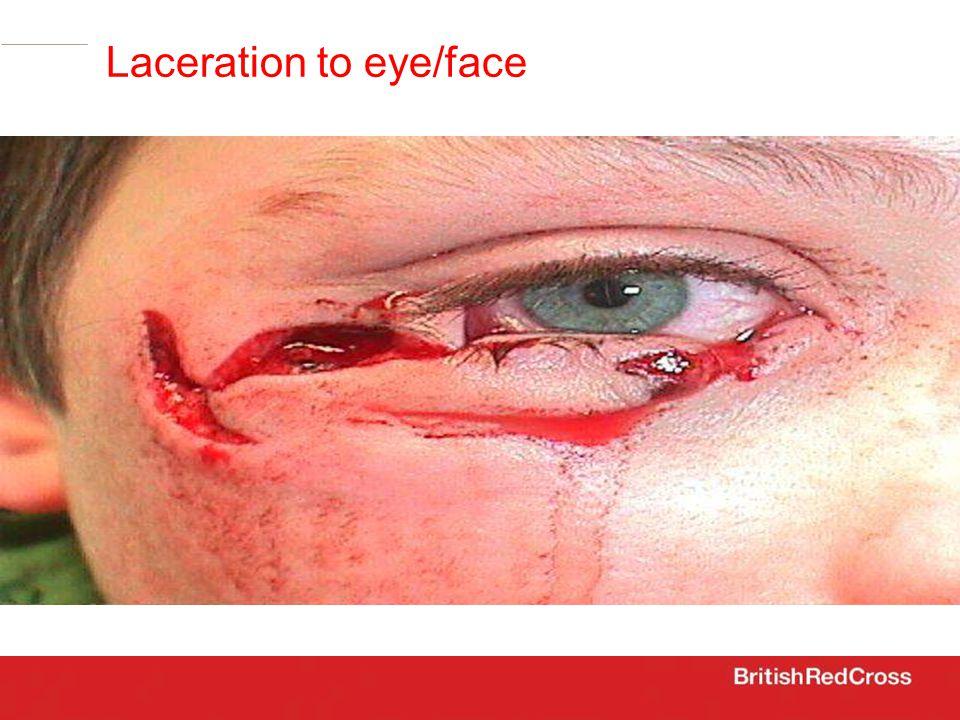 Laceration to eye/face