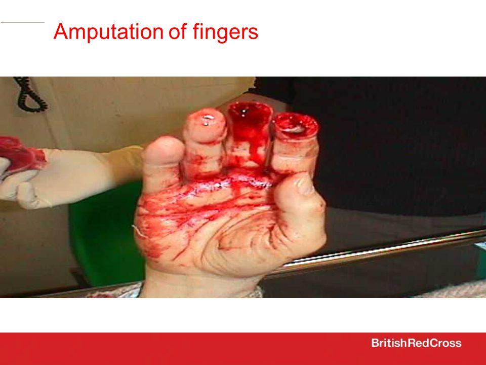 Amputation of fingers
