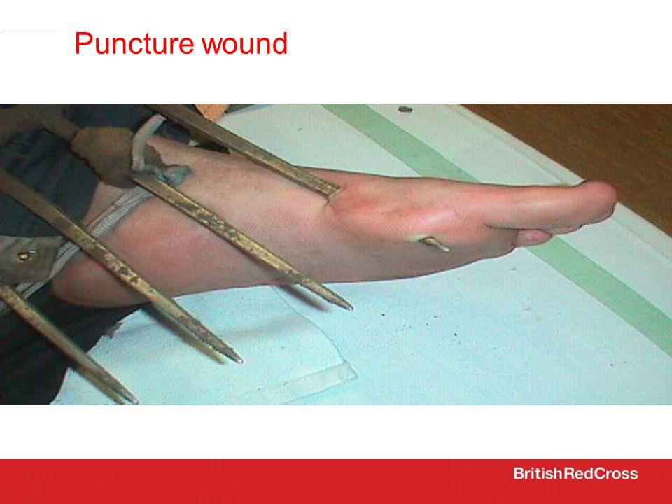 Puncture wound