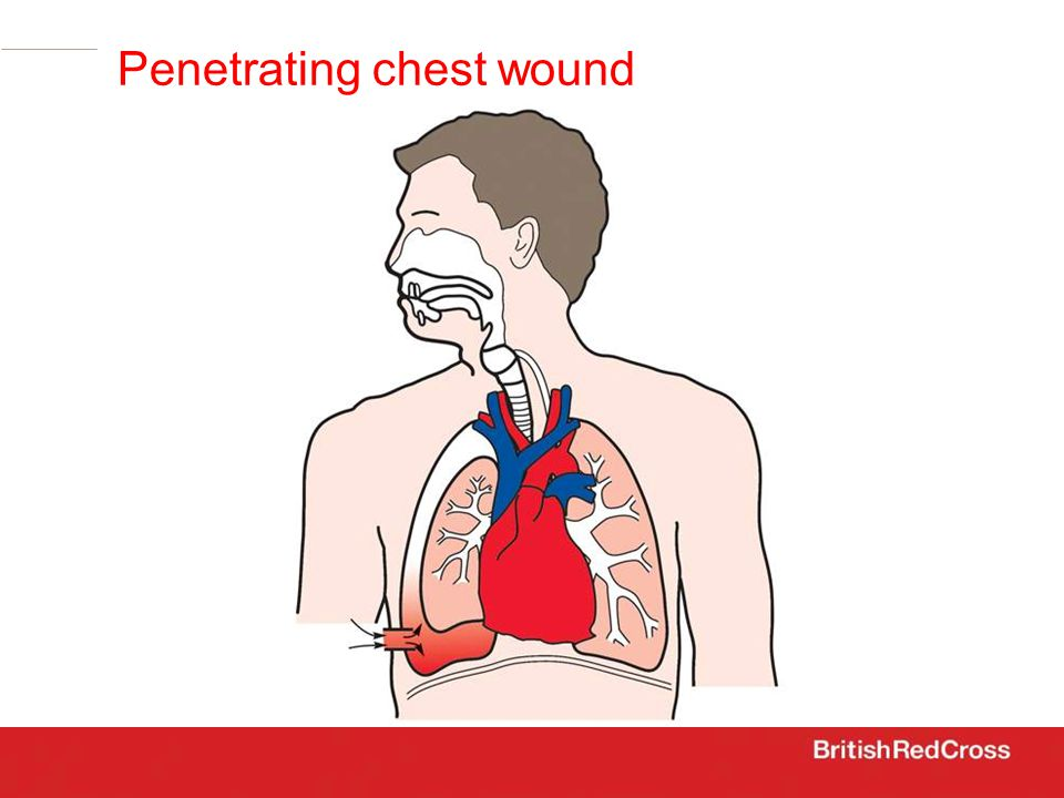 Penetrating chest wound