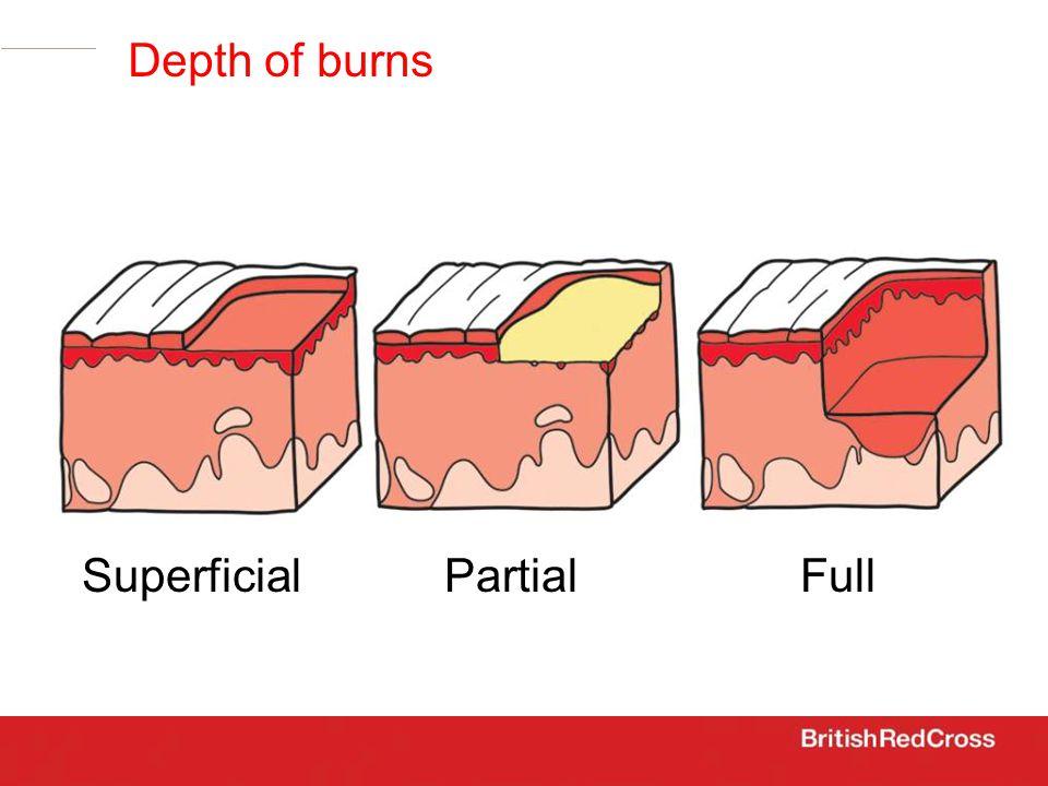 SuperficialPartialFull Depth of burns
