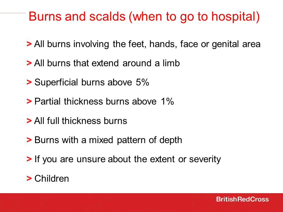 > All burns involving the feet, hands, face or genital area > All burns that extend around a limb > Superficial burns above 5% > Partial thickness burns above 1% > All full thickness burns > Burns with a mixed pattern of depth > If you are unsure about the extent or severity > Children Burns and scalds (when to go to hospital)