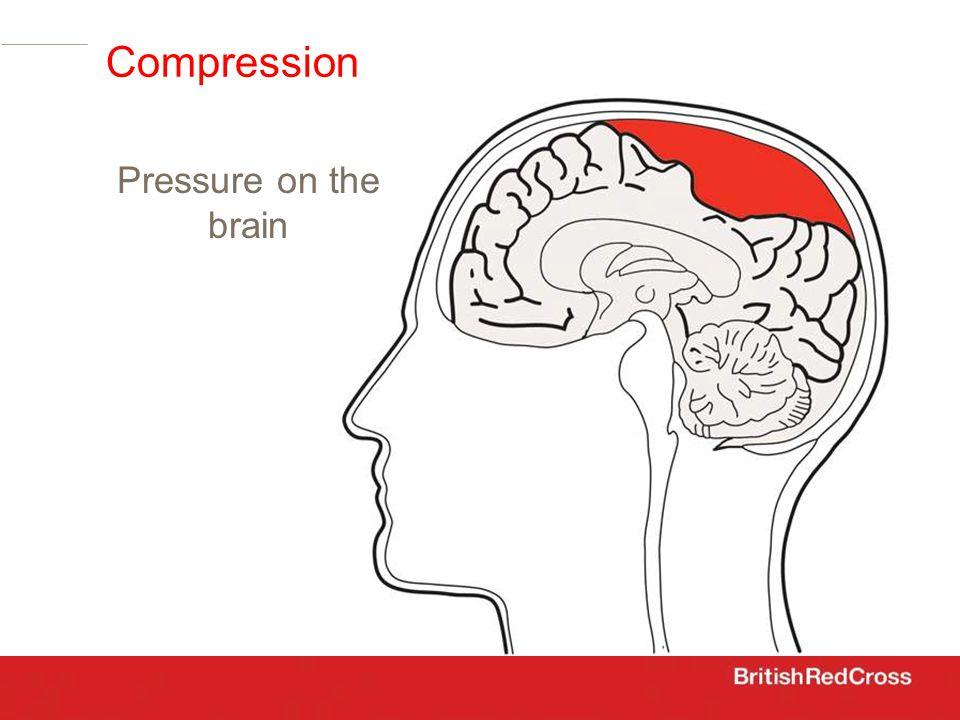 Compression Pressure on the brain
