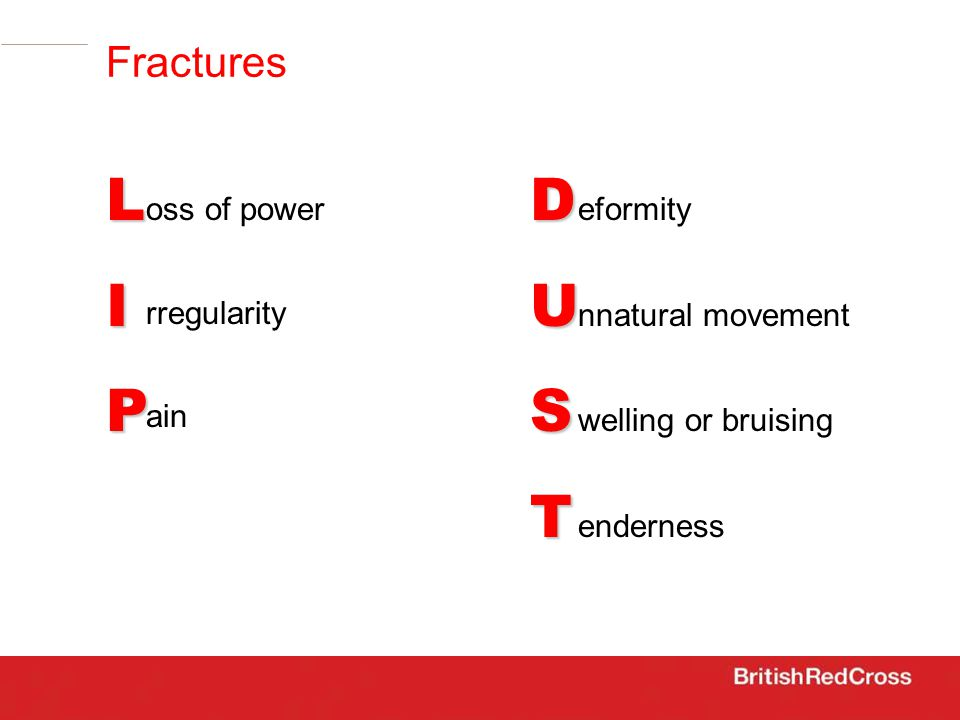 Fractures LIP oss of power rregularity ain DUST eformity nnatural movement welling or bruising enderness
