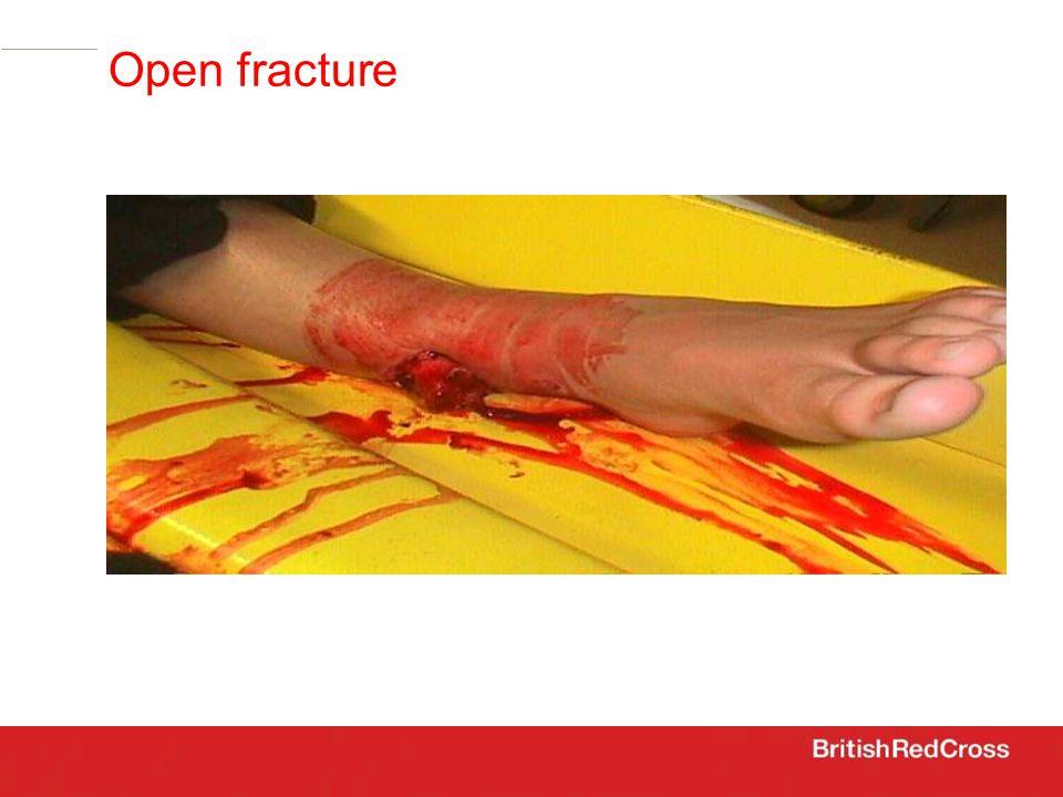 open fracture Open fracture