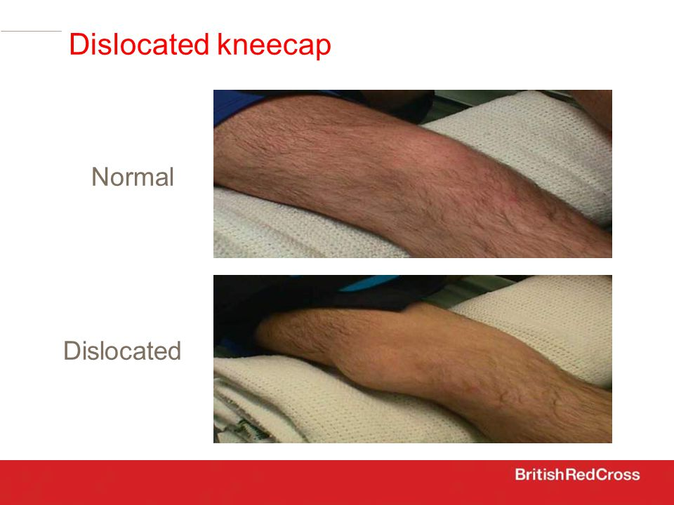 Dislocated kneecap Normal Dislocated