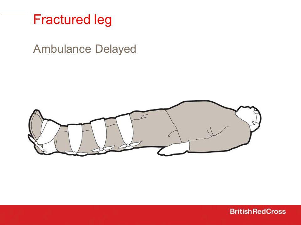 Ambulance Delayed Fractured leg