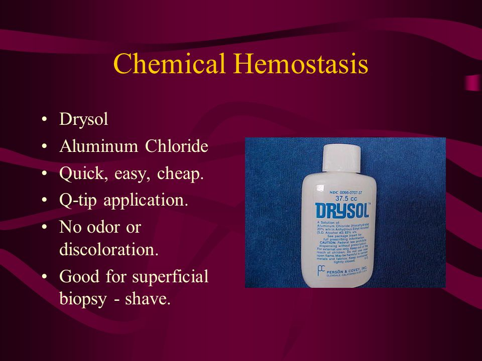 Chemical Hemostasis Drysol Aluminum Chloride Quick, easy, cheap. Q-tip application. No odor or discoloration. Good for superficial biopsy - shave.
