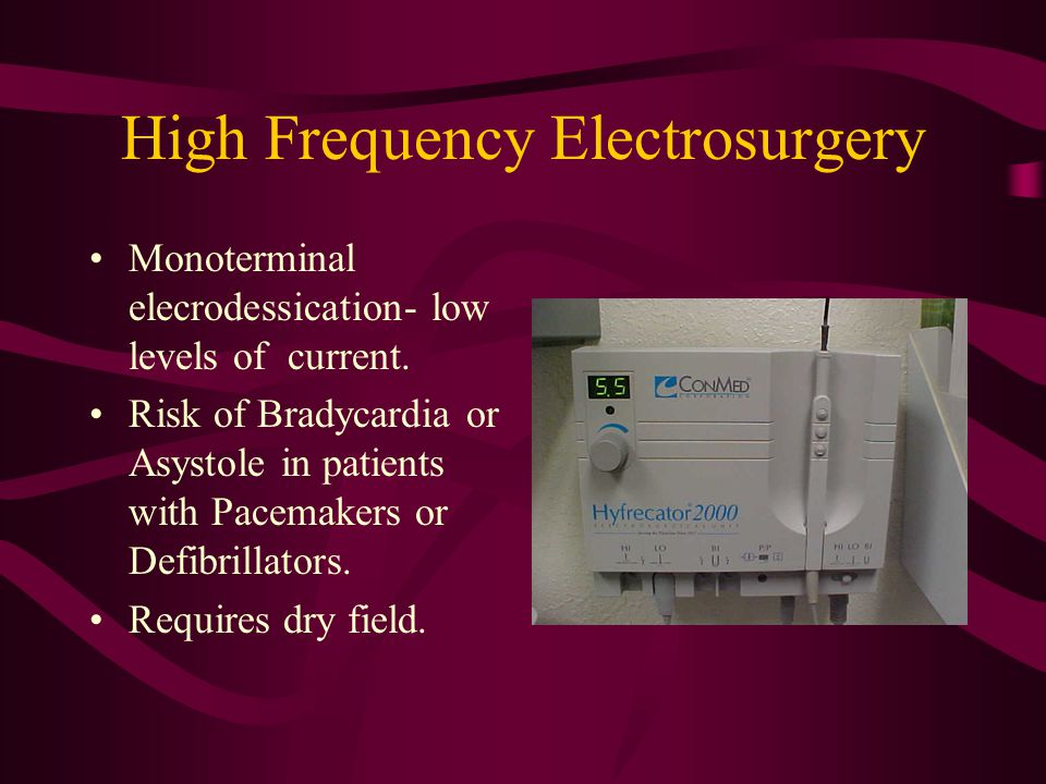 High Frequency Electrosurgery Monoterminal elecrodessication- low levels of current.