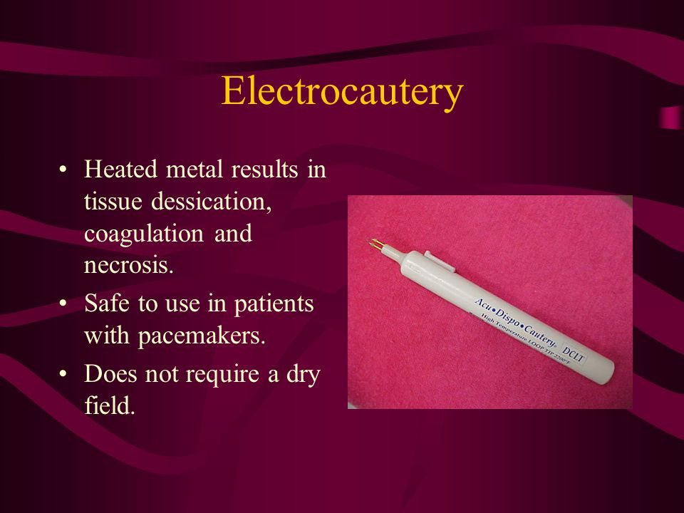 Electrocautery Heated metal results in tissue dessication, coagulation and necrosis.