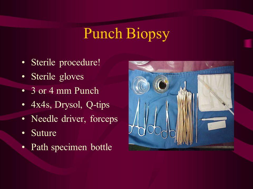 Punch Biopsy Sterile procedure.