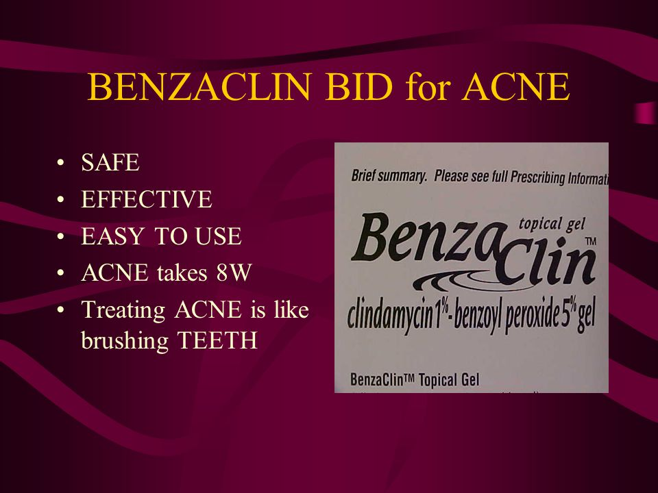 BENZACLIN BID for ACNE SAFE EFFECTIVE EASY TO USE ACNE takes 8W Treating ACNE is like brushing TEETH