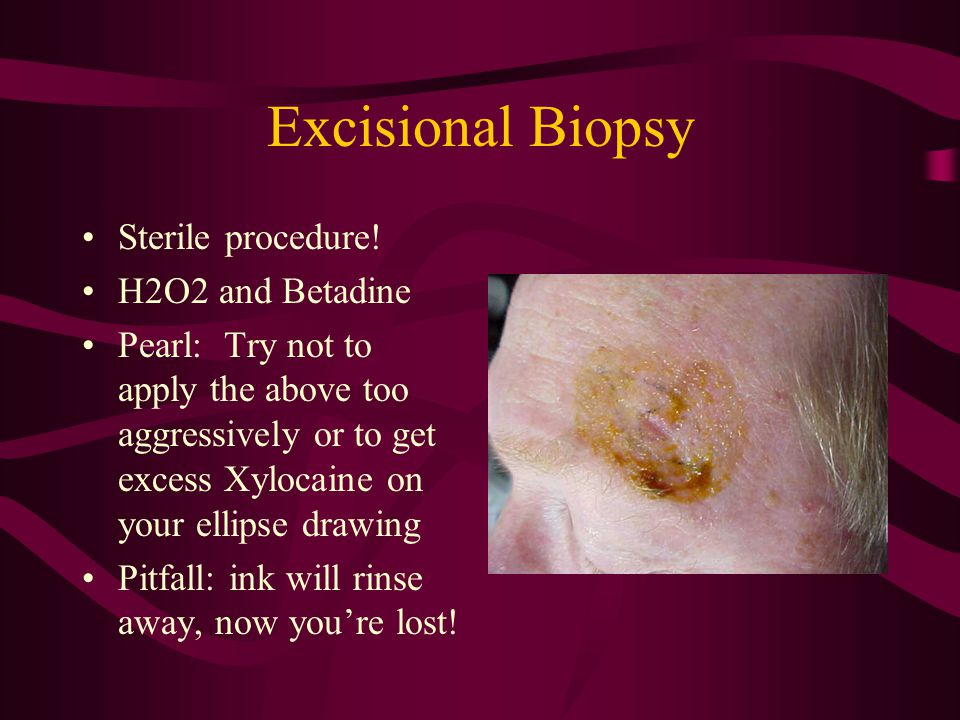 Excisional Biopsy Sterile procedure! H2O2 and Betadine Pearl: Try not to apply the above too aggressively or to get excess Xylocaine on your ellipse d