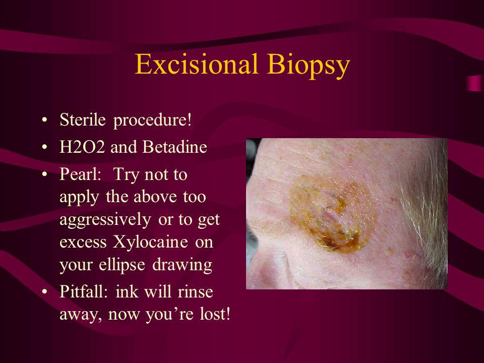 Excisional Biopsy Sterile procedure.