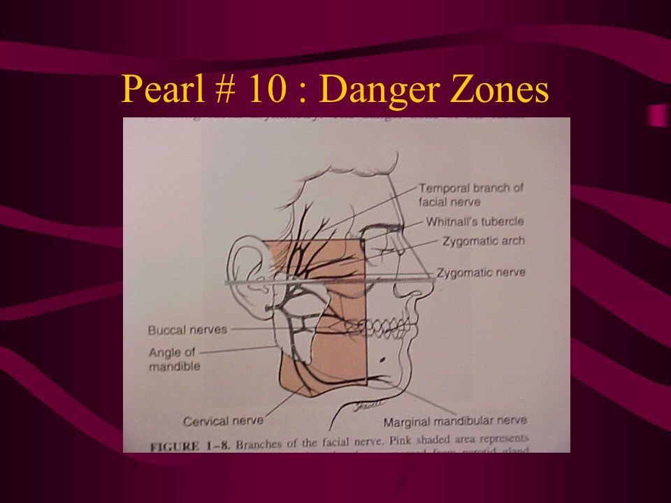 Pearl # 10 : Danger Zones