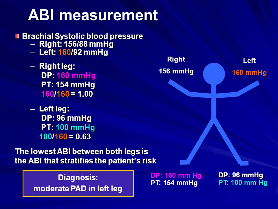 Brachial Systolic blood pressure –Right: 156/88 mmHg –Left: 160/92 mmHg –Right leg: DP: 160 mmHg DP: 160 mmHg PT: 154 mmHg PT: 154 mmHg 160/160 = 1.00 160/160 = 1.00 –Left leg: DP: 96 mmHg DP: 96 mmHg PT: 100 mmHg PT: 100 mmHg 100/160 = 0.63 100/160 = 0.63 The lowest ABI between both legs is the ABI that stratifies the patient's risk DP: 160 mm Hg PT: 154 mmHg Right 156 mmHg Left 160 mmHg Diagnosis: moderate PAD in left leg ABI measurement DP: 96 mmHg PT: 100 mm Hg
