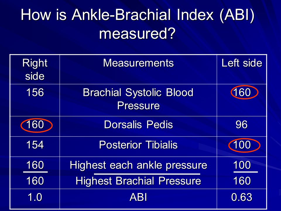 How is Ankle-Brachial Index (ABI) measured.