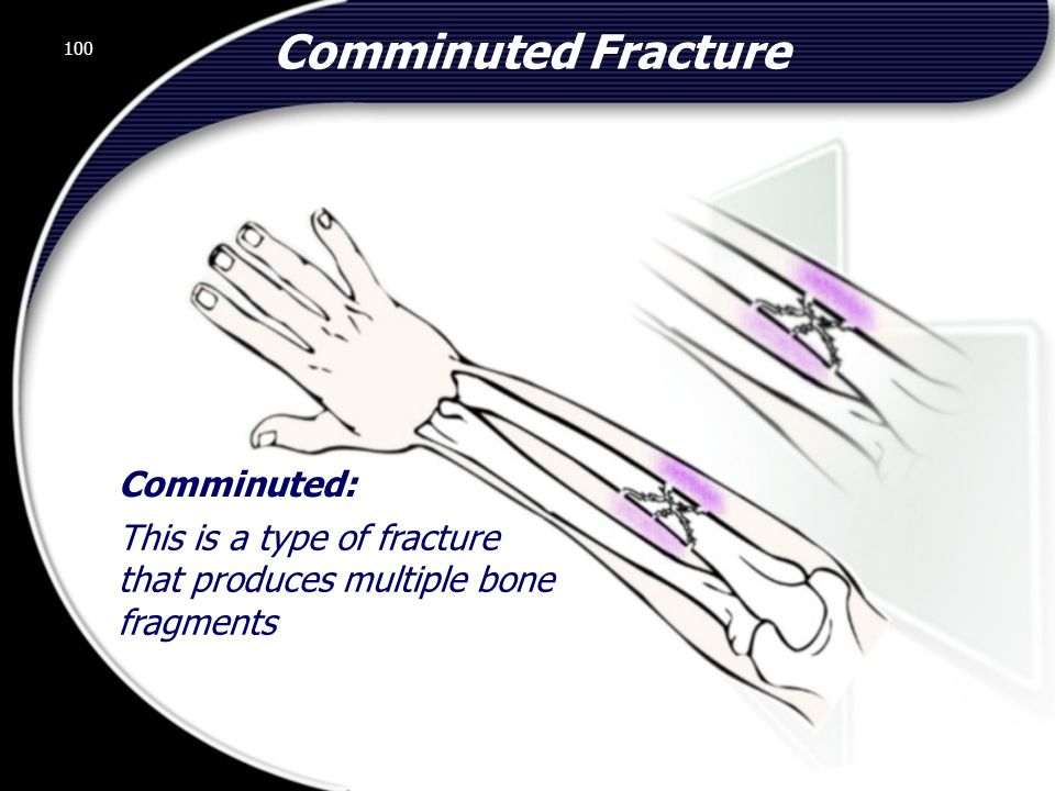 100 Comminuted: This is a type of fracture that produces multiple bone fragments Comminuted Fracture 100 © 2002 Abertay Nationwide Training