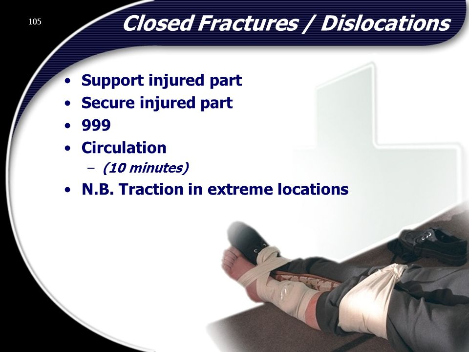 105 Closed Fractures / Dislocations Support injured part Secure injured part 999 Circulation –(10 minutes) N.B.