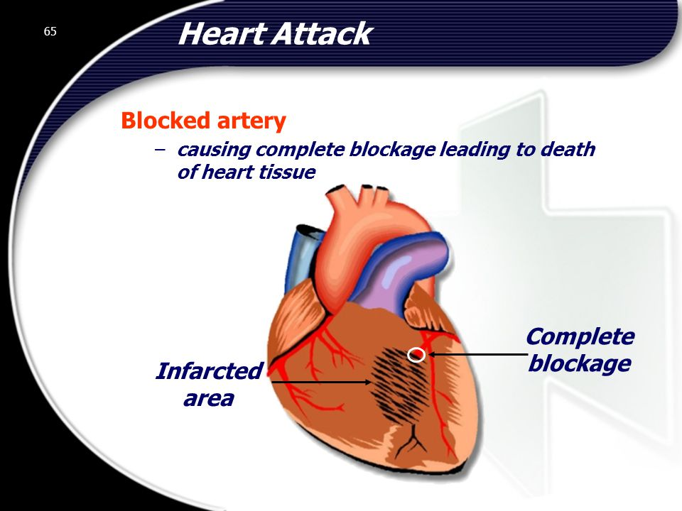 65 Heart Attack Blocked artery –causing complete blockage leading to death of heart tissue Infarcted area Complete blockage 65 © 2002 Abertay Nationwide Training