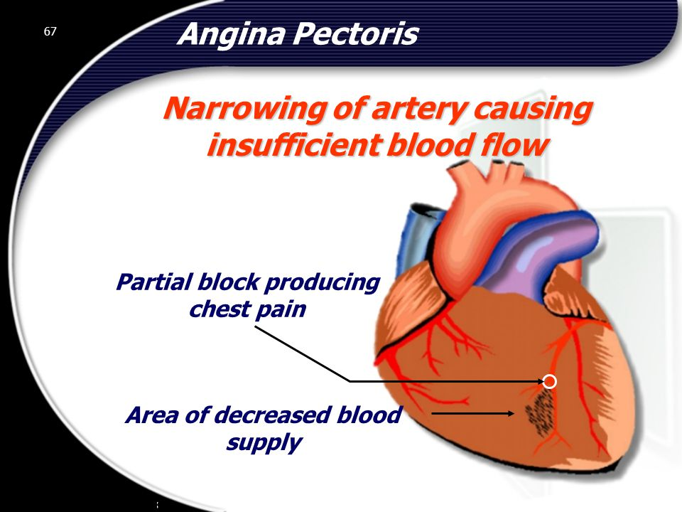 67 Area of decreased blood supply Angina Pectoris Narrowing of artery causing insufficient blood flow 67 Partial block producing chest pain © 2002 Abertay Nationwide Training
