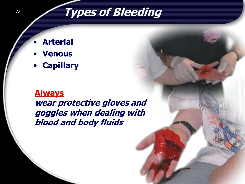 72 Always wear protective gloves and goggles when dealing with blood and body fluids Types of Bleeding Arterial Venous Capillary 72 © 2002 Abertay Nationwide Training