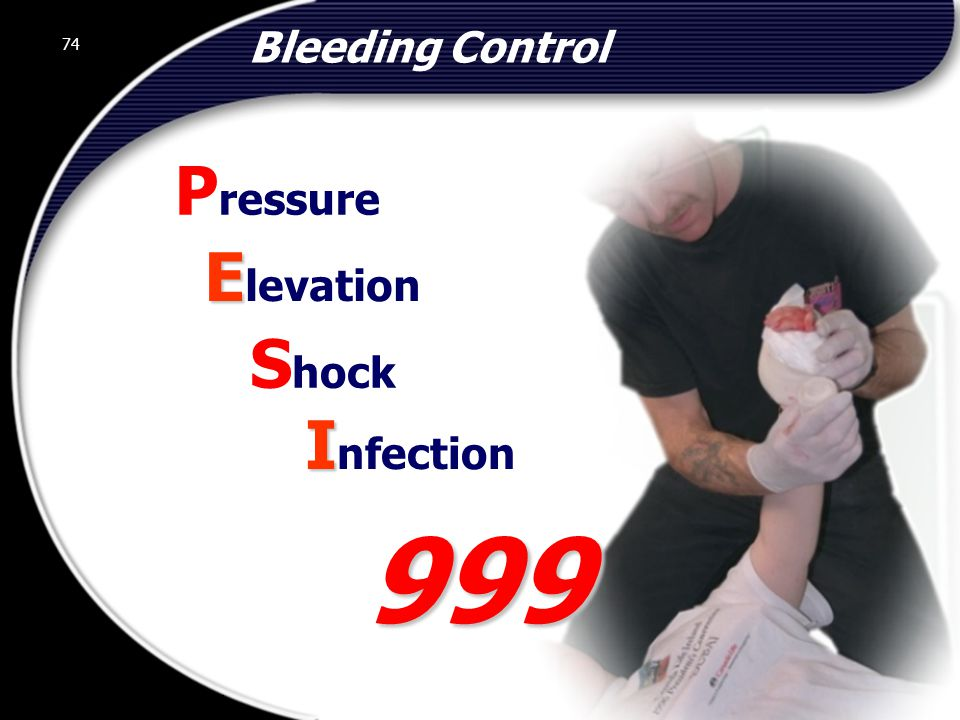 74 Bleeding Control E E levation S hock I I nfection P ressure 999 74 © 2002 Abertay Nationwide Training