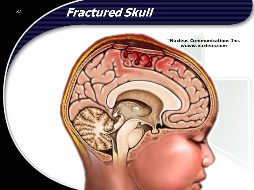 87 Fractured Skull 87 © 2002 Abertay Nationwide Training