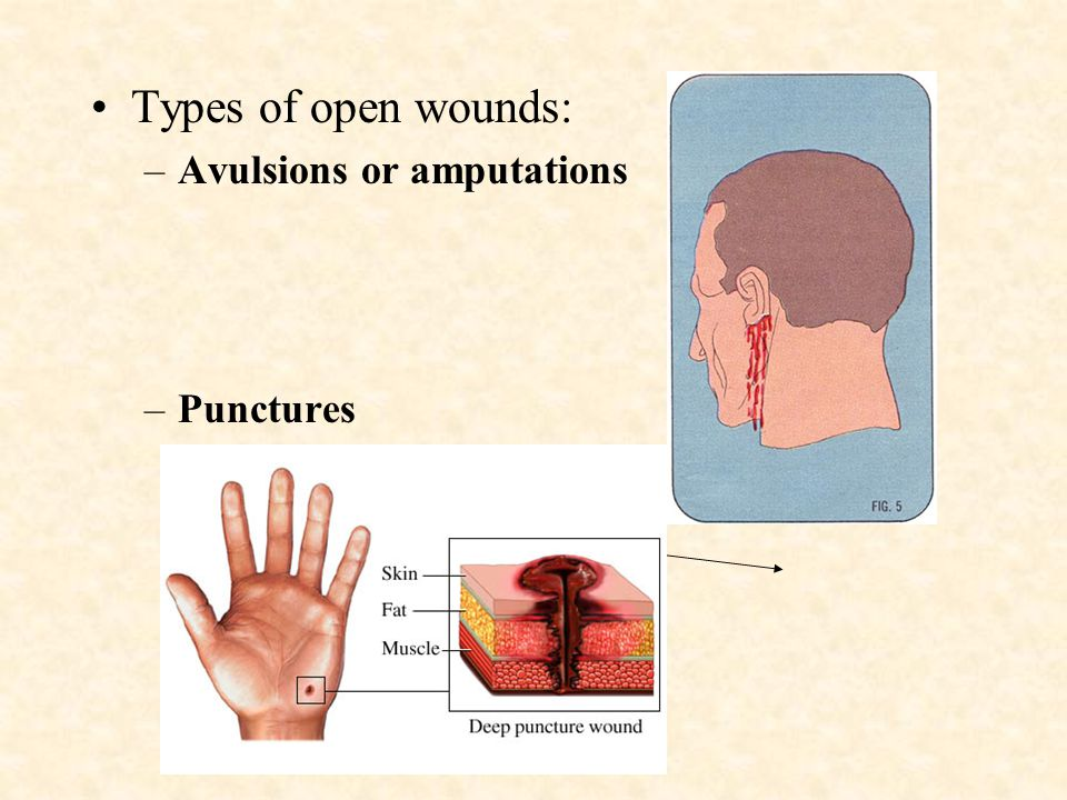 Types of open wounds: –Abrasions –Lacerations