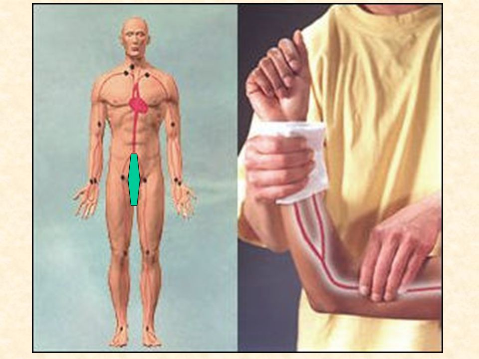 Elevation Pressure Points –Rt. and Lt. Brachial Artery –Rt. and Lt. Femoral Artery
