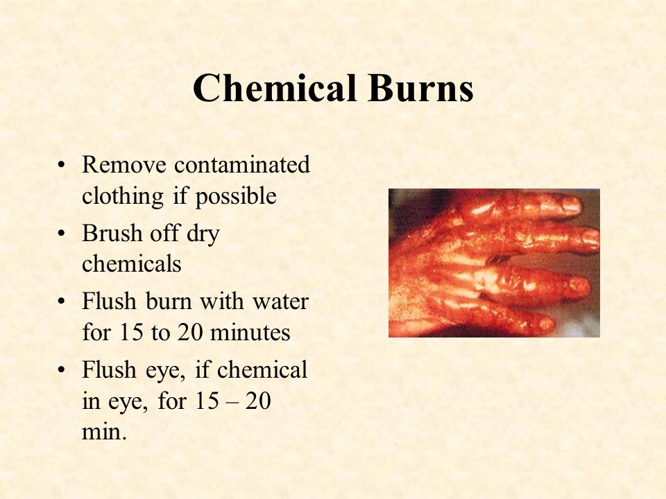 DO NOT!!!! –Use ice –Break blisters –Remove pieces of clothing stuck to burn –Use any type of ointment on a severe burns –Do not immerse 3 rd degree b