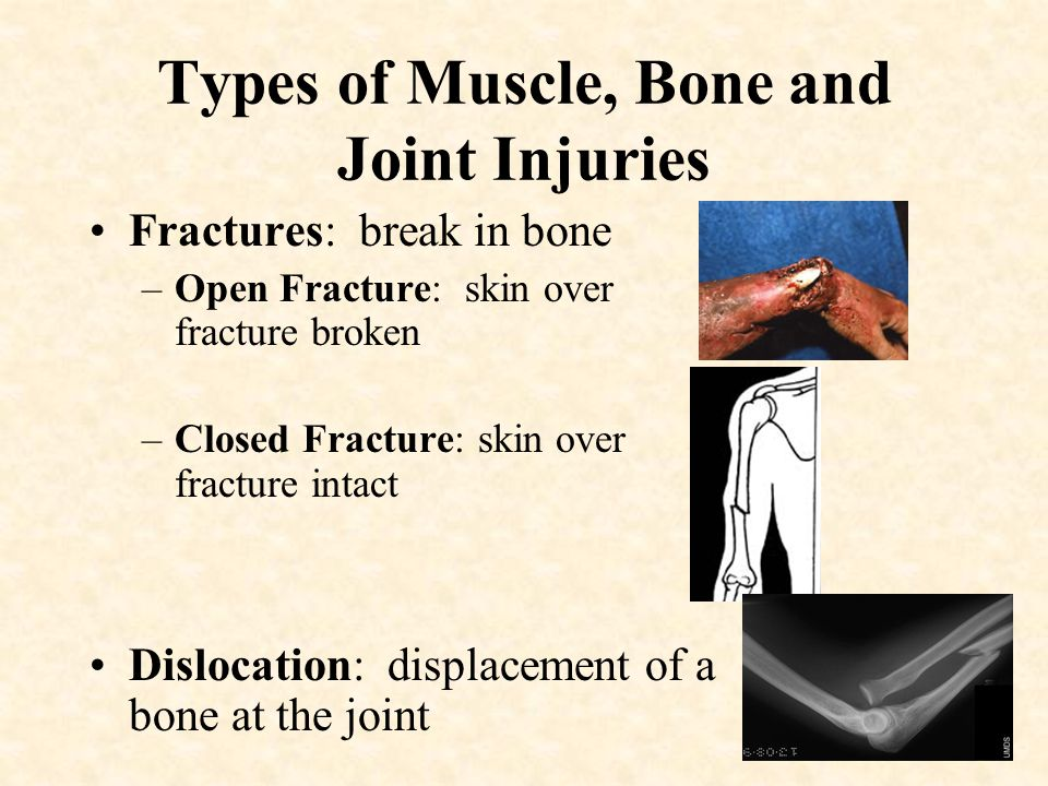 Lesson 10 Injuries to Muscles, Bones and Joints