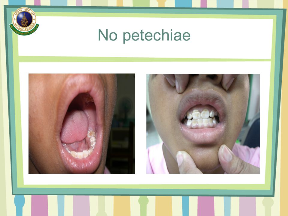 No petechiae