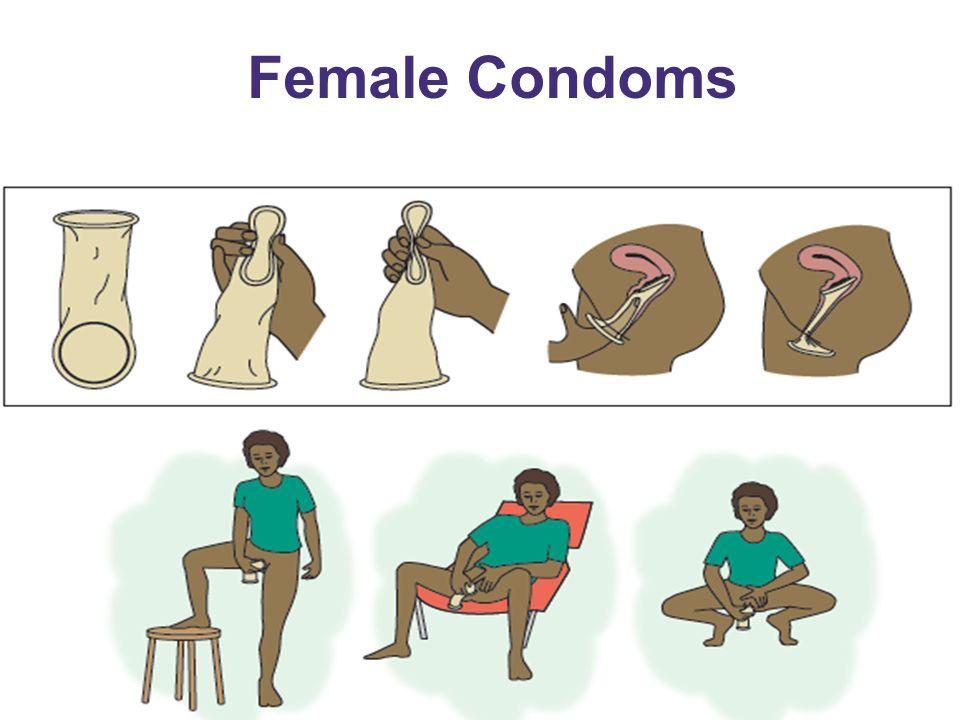 Female Condoms 30