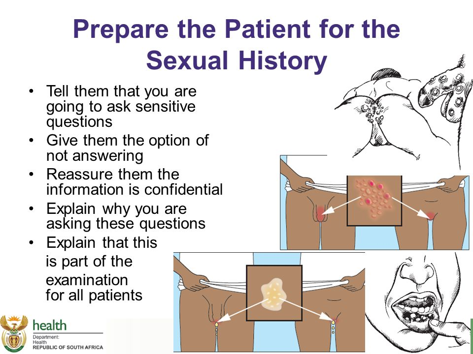 Prepare the Patient for the Sexual History Tell them that you are going to ask sensitive questions Give them the option of not answering Reassure them
