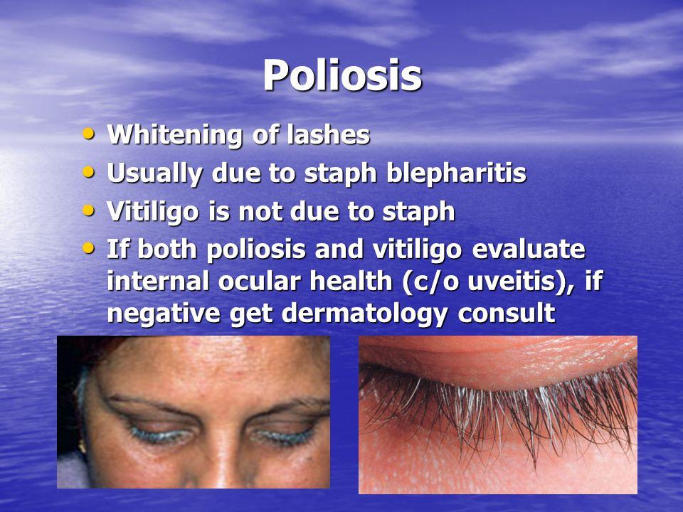 Poliosis Whitening of lashes Whitening of lashes Usually due to staph blepharitis Usually due to staph blepharitis Vitiligo is not due to staph Vitili