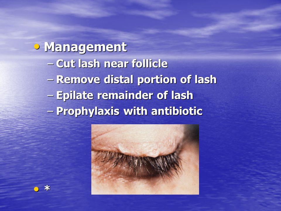 Management Management –Cut lash near follicle –Remove distal portion of lash –Epilate remainder of lash –Prophylaxis with antibiotic *