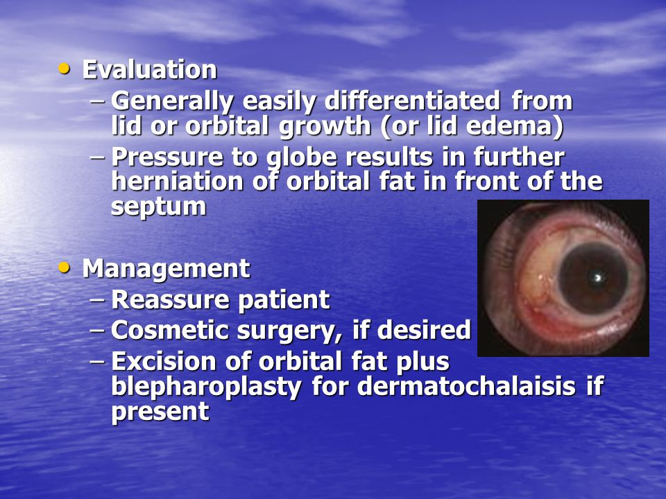 Evaluation Evaluation –Generally easily differentiated from lid or orbital growth (or lid edema) –Pressure to globe results in further herniation of o