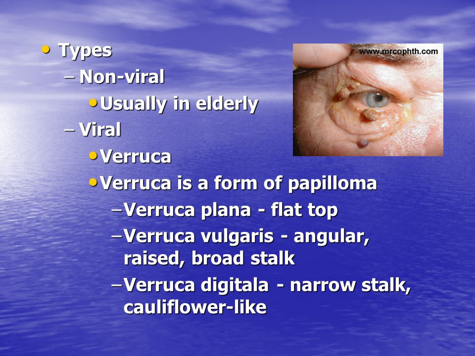 Types Types –Non-viral Usually in elderly Usually in elderly –Viral Verruca Verruca Verruca is a form of papilloma Verruca is a form of papilloma –Ver